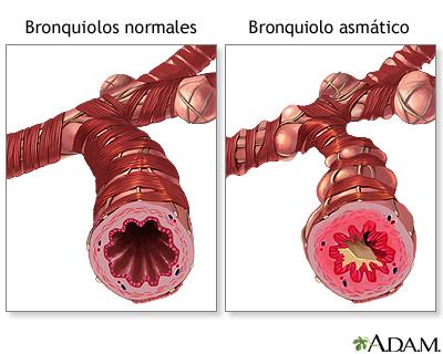 bronquio con asma