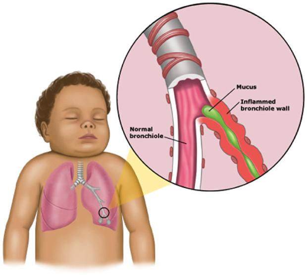 bronquiolitis-infantil